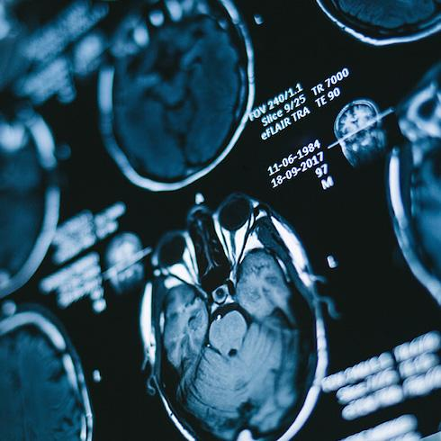 Artificial intelligence and resonance imaging: new methods for diagnosing brain tumours