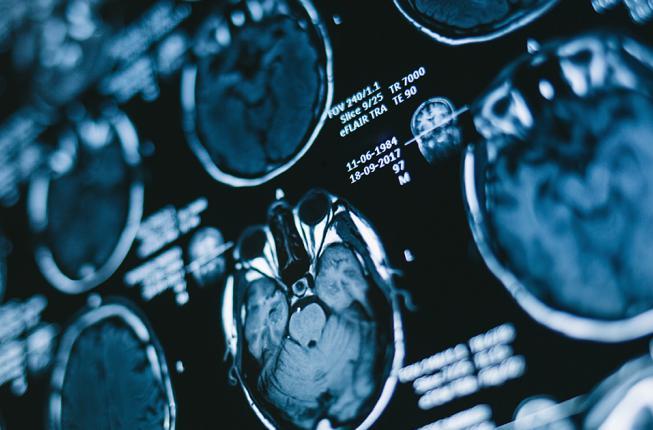Collegamento a Intelligenza artificiale e risonanze: nuovo metodo per la diagnosi dei tumori cerebrali