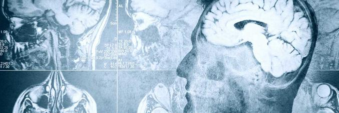 lastre cervelli